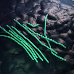 Bacillus-cereus-300x225