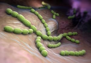 Streptococcus pneumoniae2